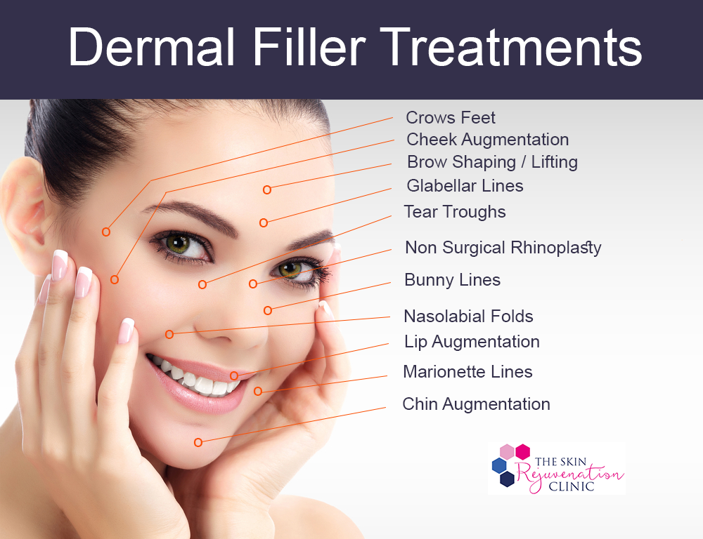 Dermal Fillers Treatments